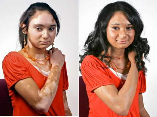 Vitiligo-Cover-Up-Before-and-After